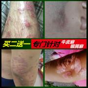 银皮净牛皮癣药膏银屑病皮肤外用皮屑股癣止痒特效无激素大腿内侧